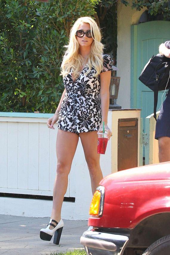 Kesha-Shows-Her-Legs
