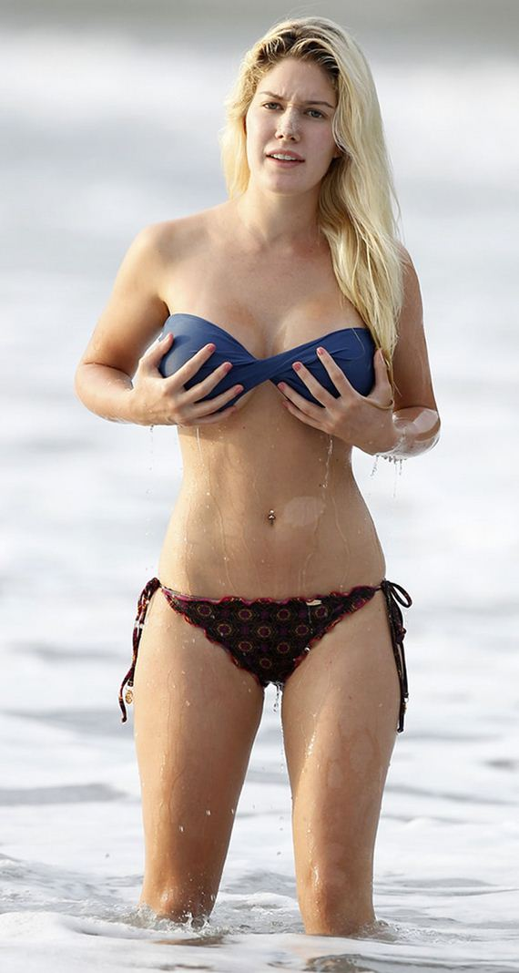 gallery_enlarged-heidi-montag-breast-reduction