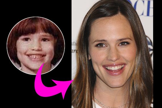 Celebs-Transformed-Puberty