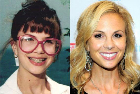 celebs-transformed-braces