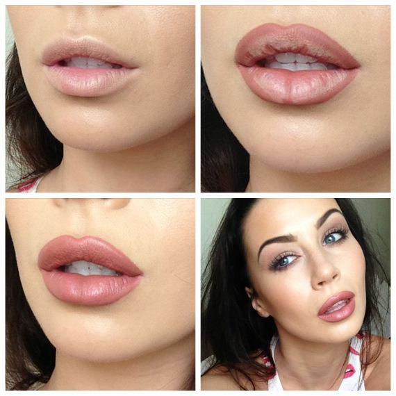 14-Fuller-Lips