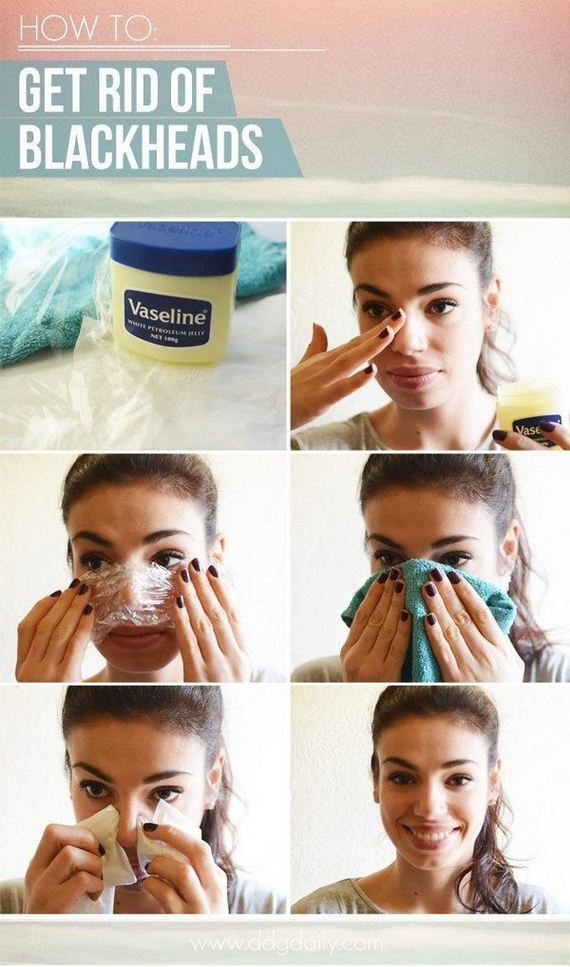 01-homemade-blackheads