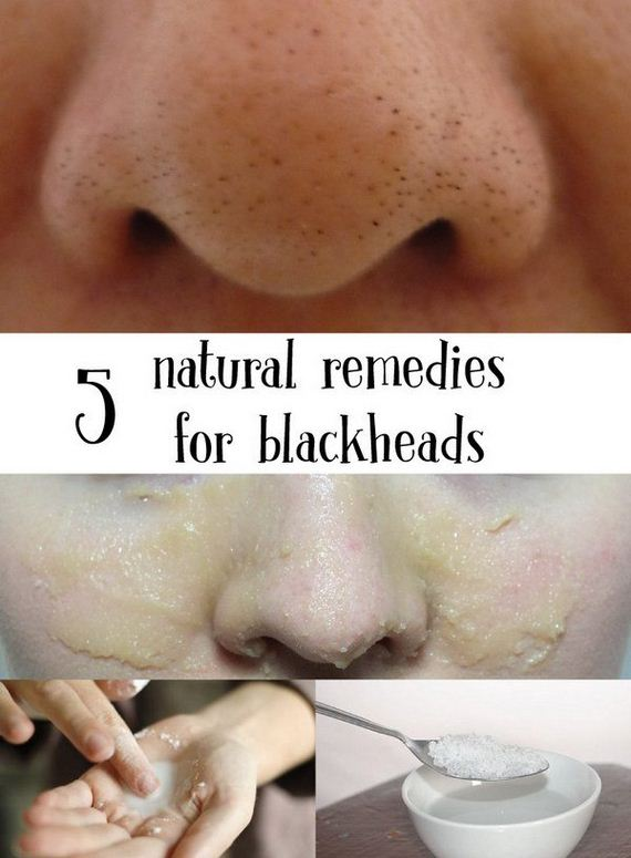 03-homemade-blackheads