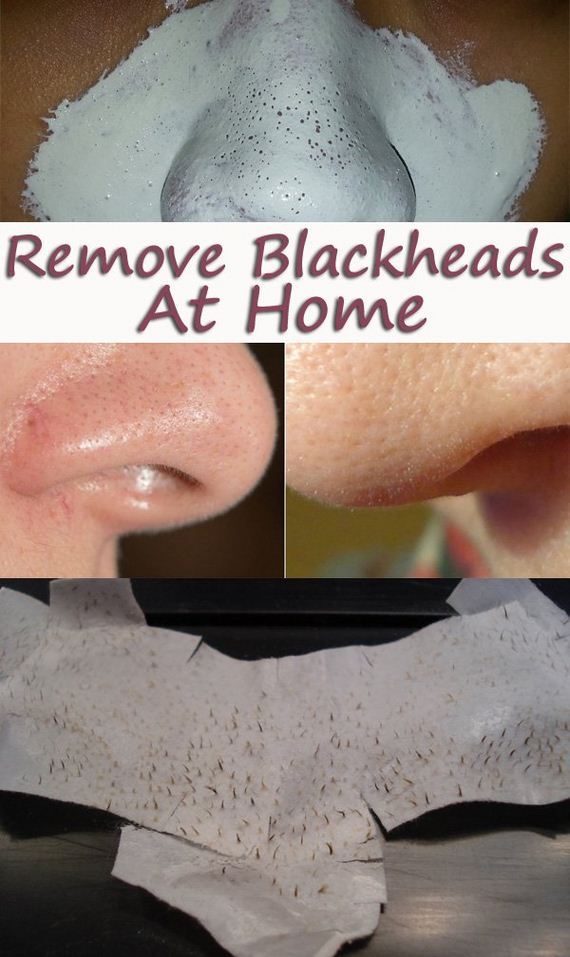 05-homemade-blackheads